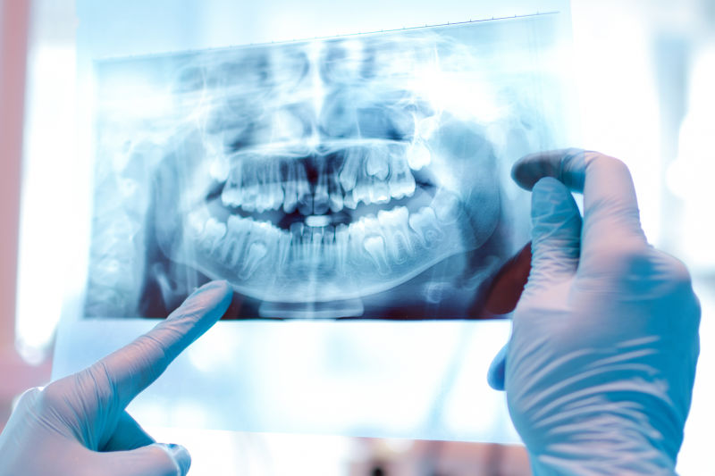 dental x-ray - emergency dentist Worcester